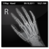 96x96px size png icon of Documents X Ray Hand